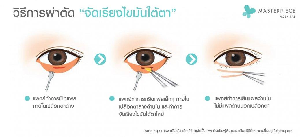 วิธีจัดเรียงไขมันใต้ตา