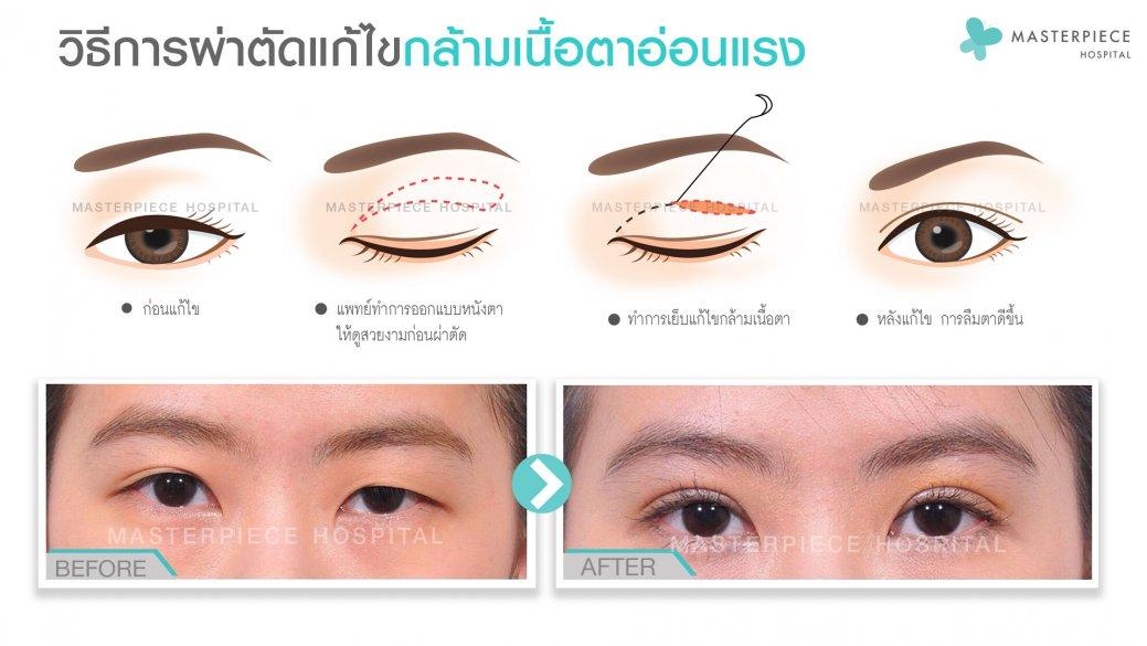 วิธีแก้ไขกล้ามเนื้อตาอ่อนแรง