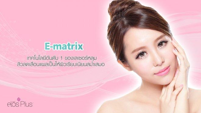1--E-matrix