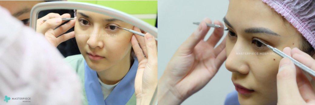 การผ่าตัดเปลือกตาบน