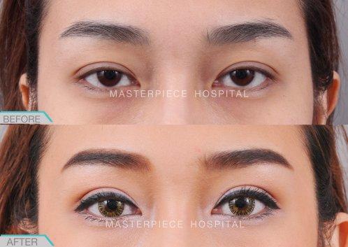 eye-ptosis-BA-02