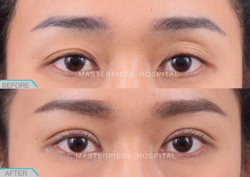 eye-ptosis-BA-03