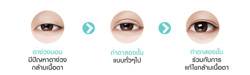 ptosis ตา 3 อัน