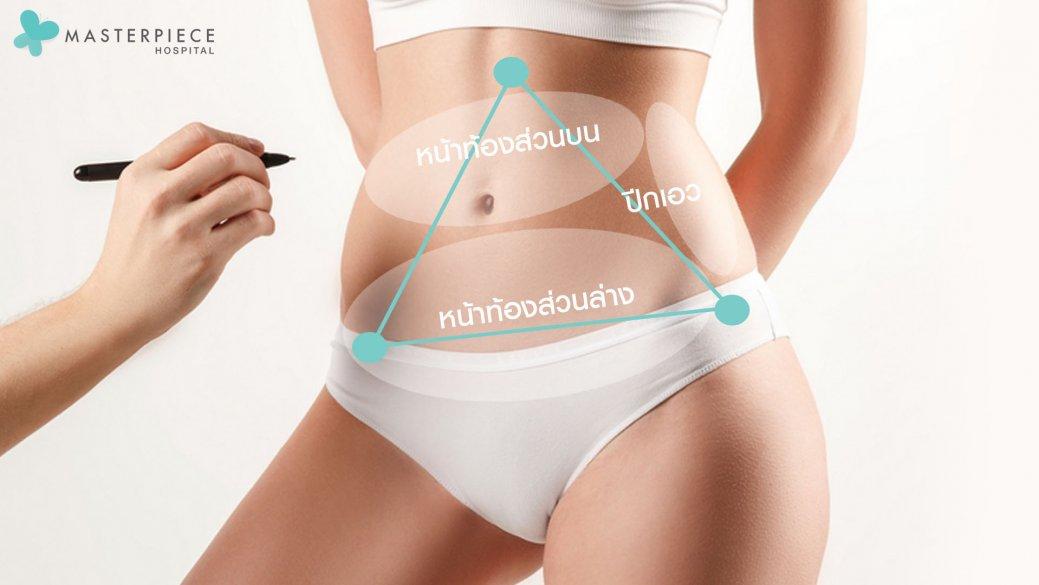 จุดผ่าตัด ตัดหนังหน้าท้อง tummy