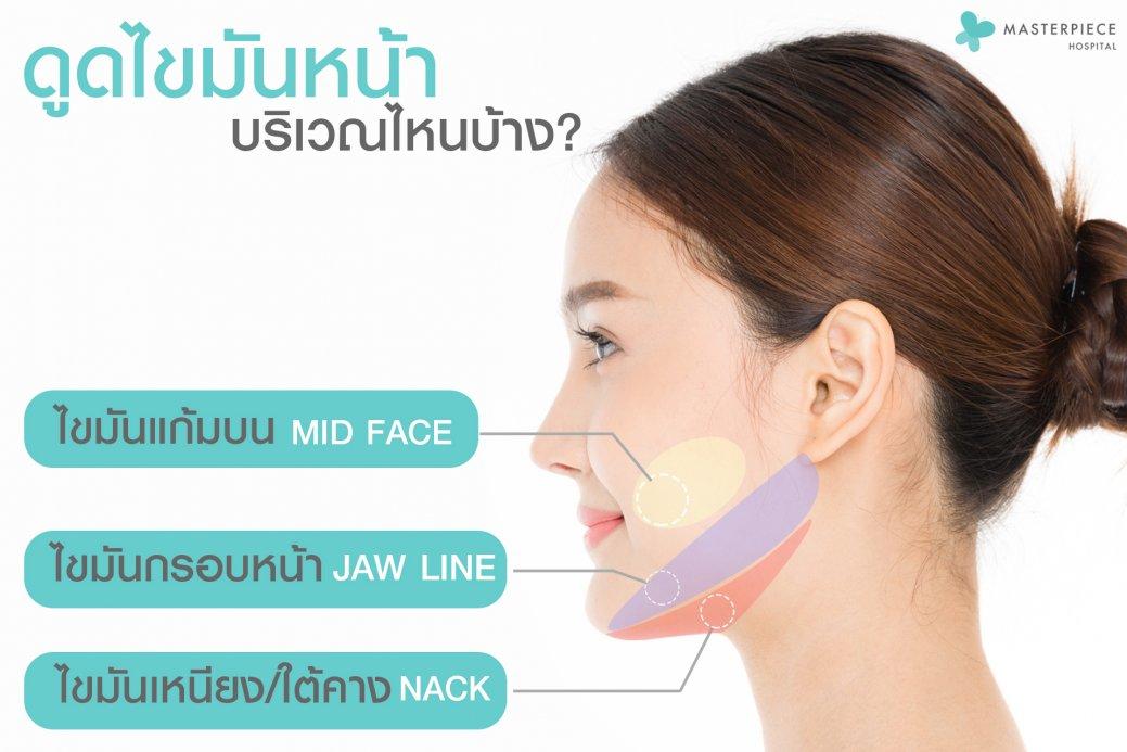 จุดที่ดูดไขมันหน้า Facial Vaser Liposuction