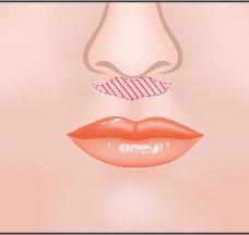 ผ่าตัดยกริมฝีปากบน (BULL HORN)