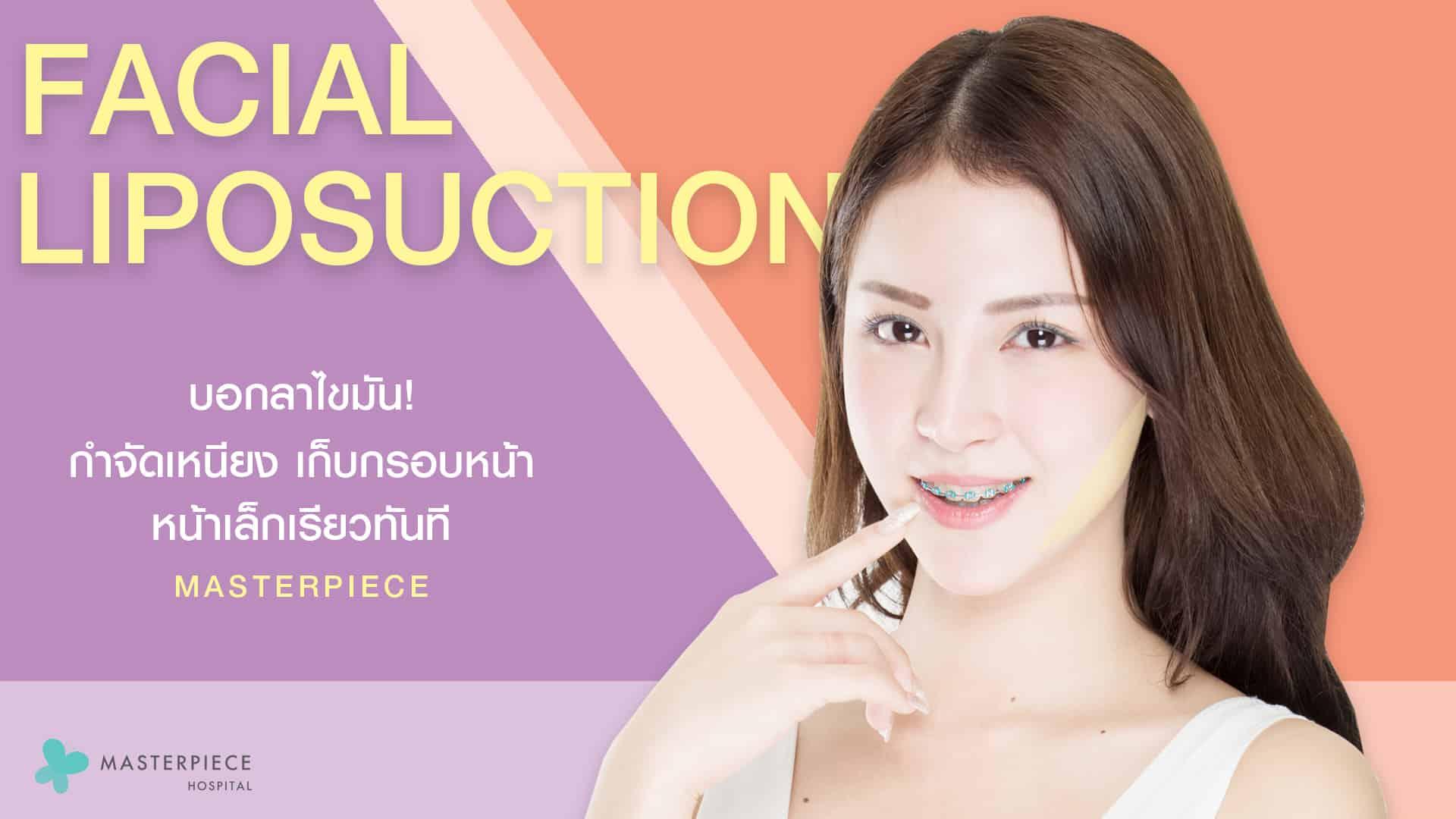 ดูดไขมันหน้า Facial Vaser Liposuction