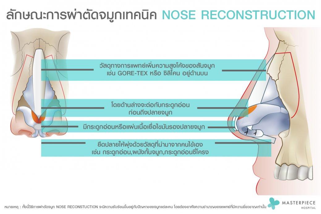 ลักษณะการผ่าตัดจมูกเทคนิค Nose reconstruction
