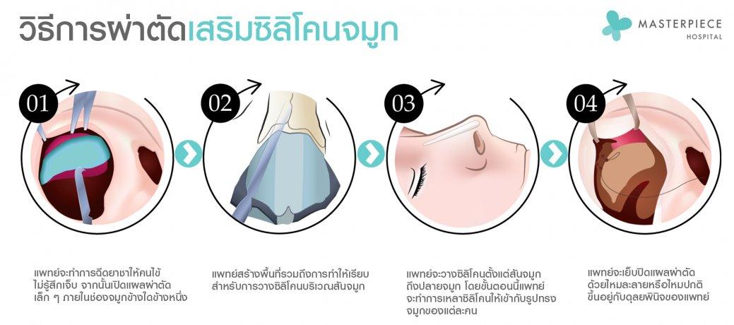 วิธีการผ่าตัดซิลิโคน1