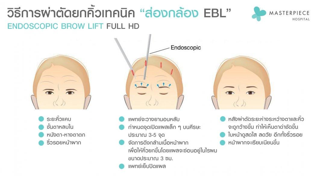 วิธีผ่าตัด EBL