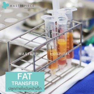 หลอดไขมัน Fat Transfer
