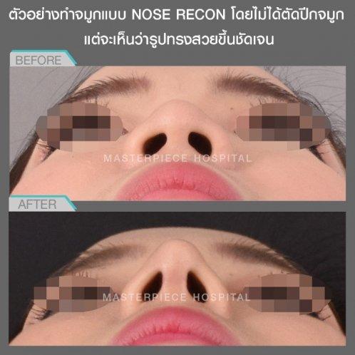 ตัวอย่างการทำจมูกแบบ NOSE RECON
