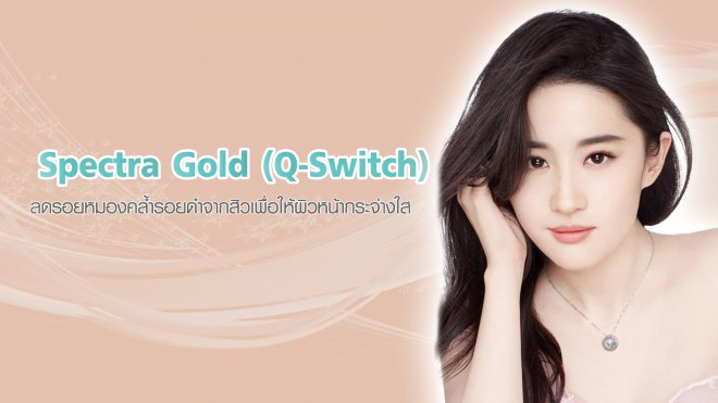 4-Spectra-Gold-(Q-Switch)