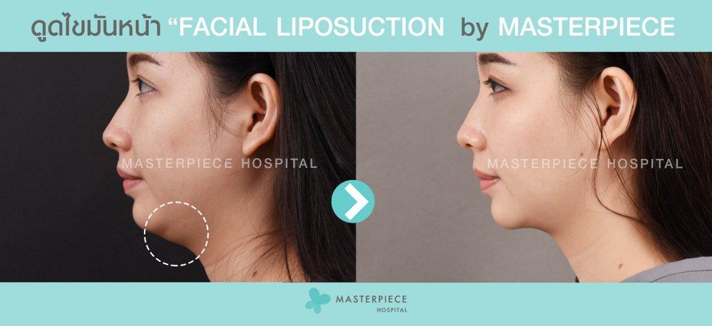 ก่อนหลัง ดูดไขมันหน้า Facial Vaser Liposuction