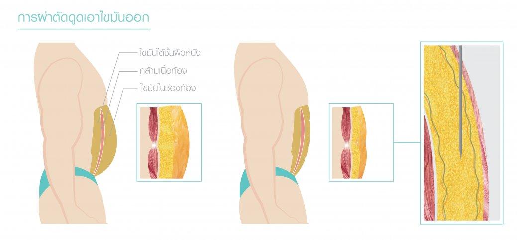 การดูดไขมัน ซิกแพค (SIX PACK LIPOSUCTION)