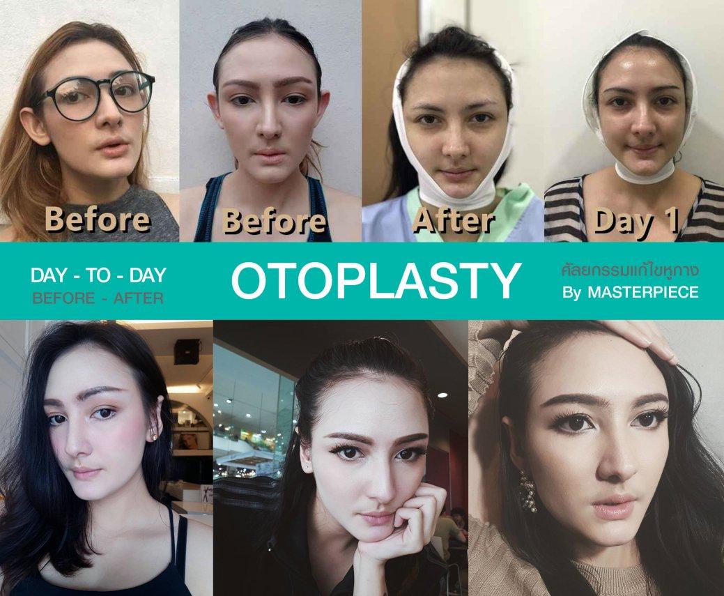 DAY TO DAY แก้ไขหูกาง (OTOPLASTY)