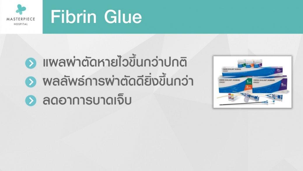 Fibrin Glue