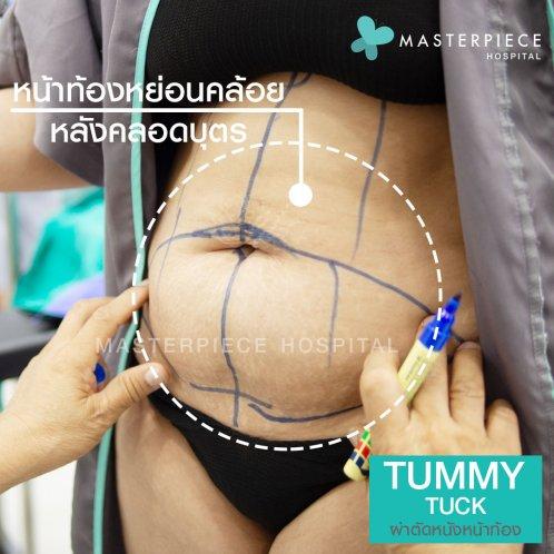 ผ่าตัด ตัดหนังหน้าท้อง tummy
