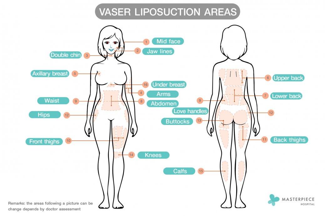 vaser areas new