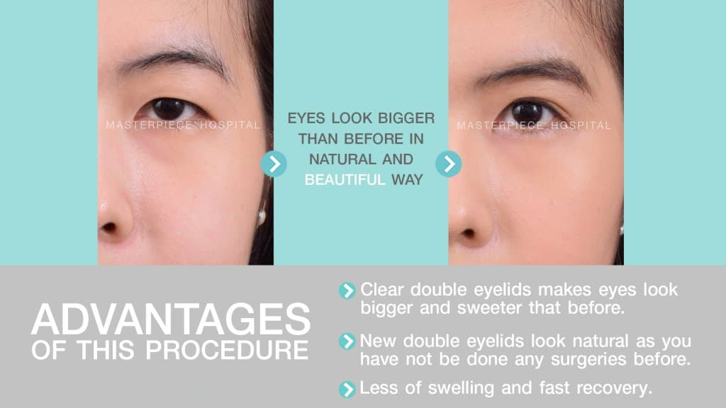Double Eyelid Surgery | Masterpiece Hospital