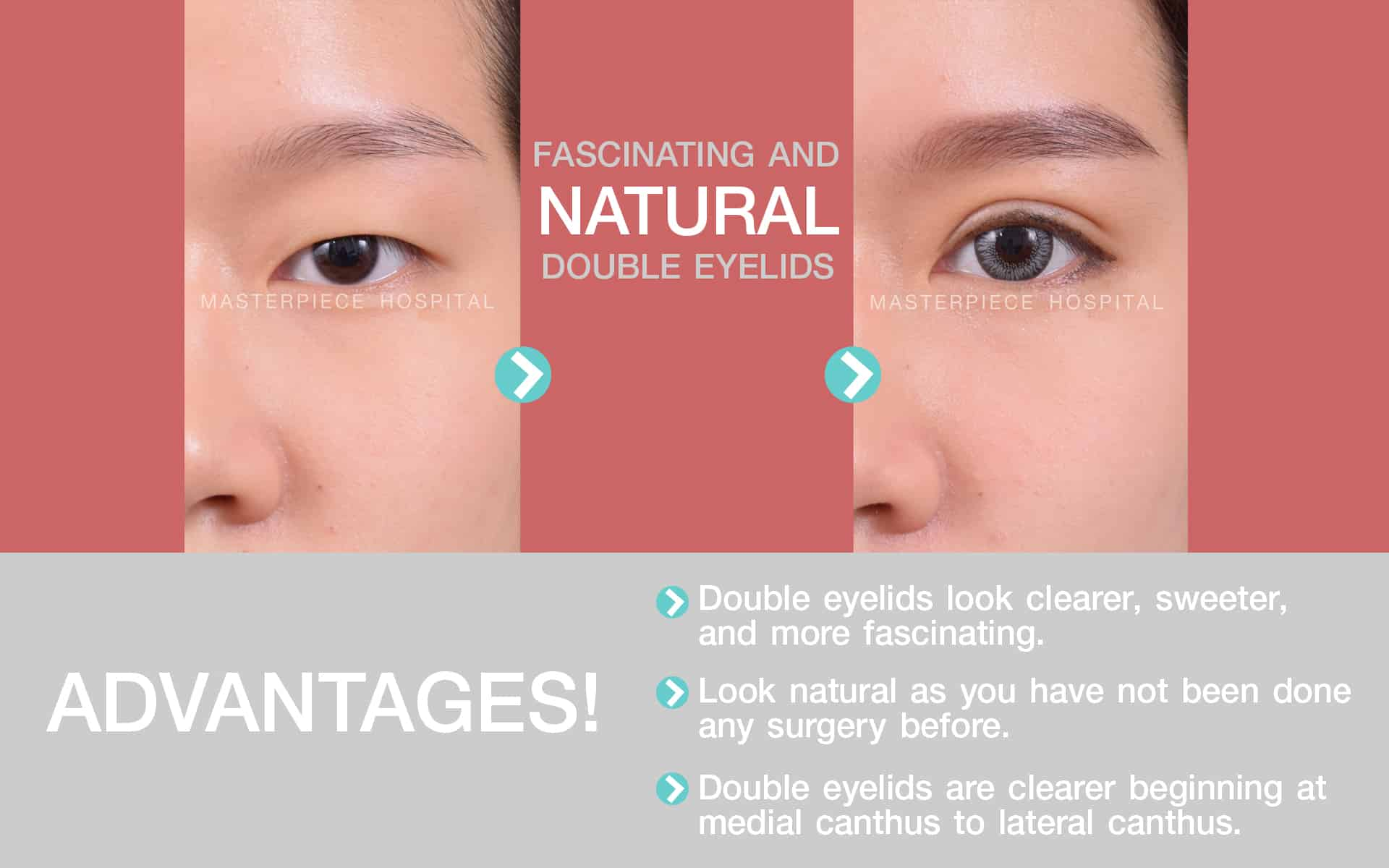 Advantages of this procedure Eye