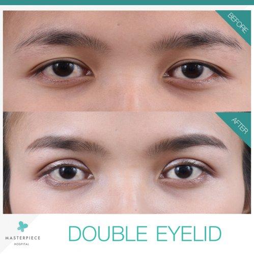Double Eyelid Surgery | Masterpiece Hospital