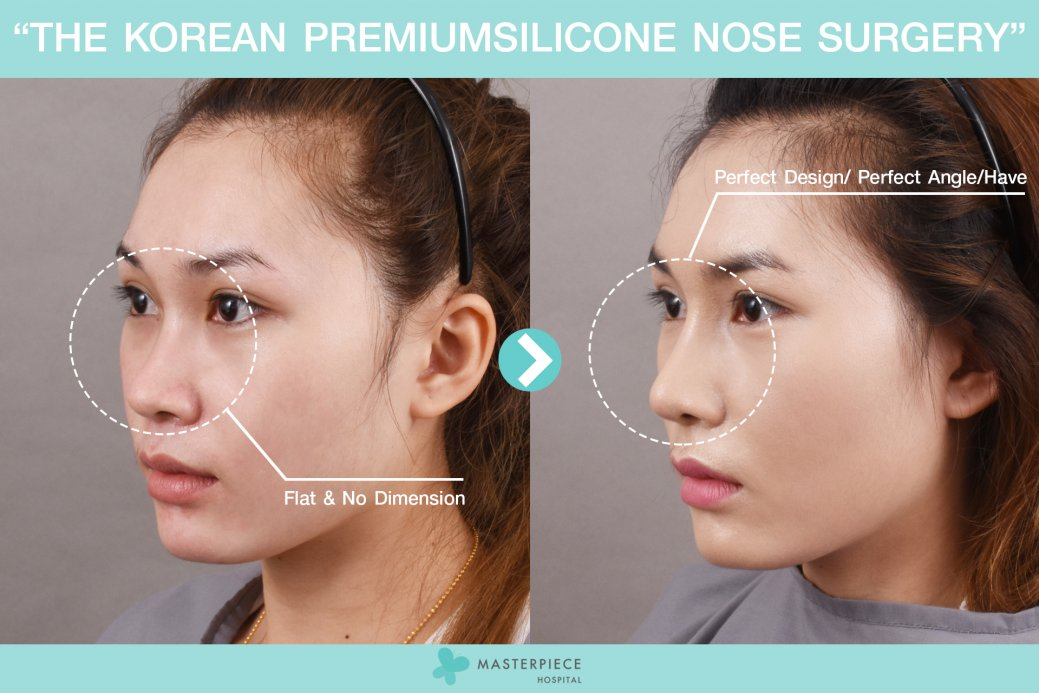 Before After Nose Silicone