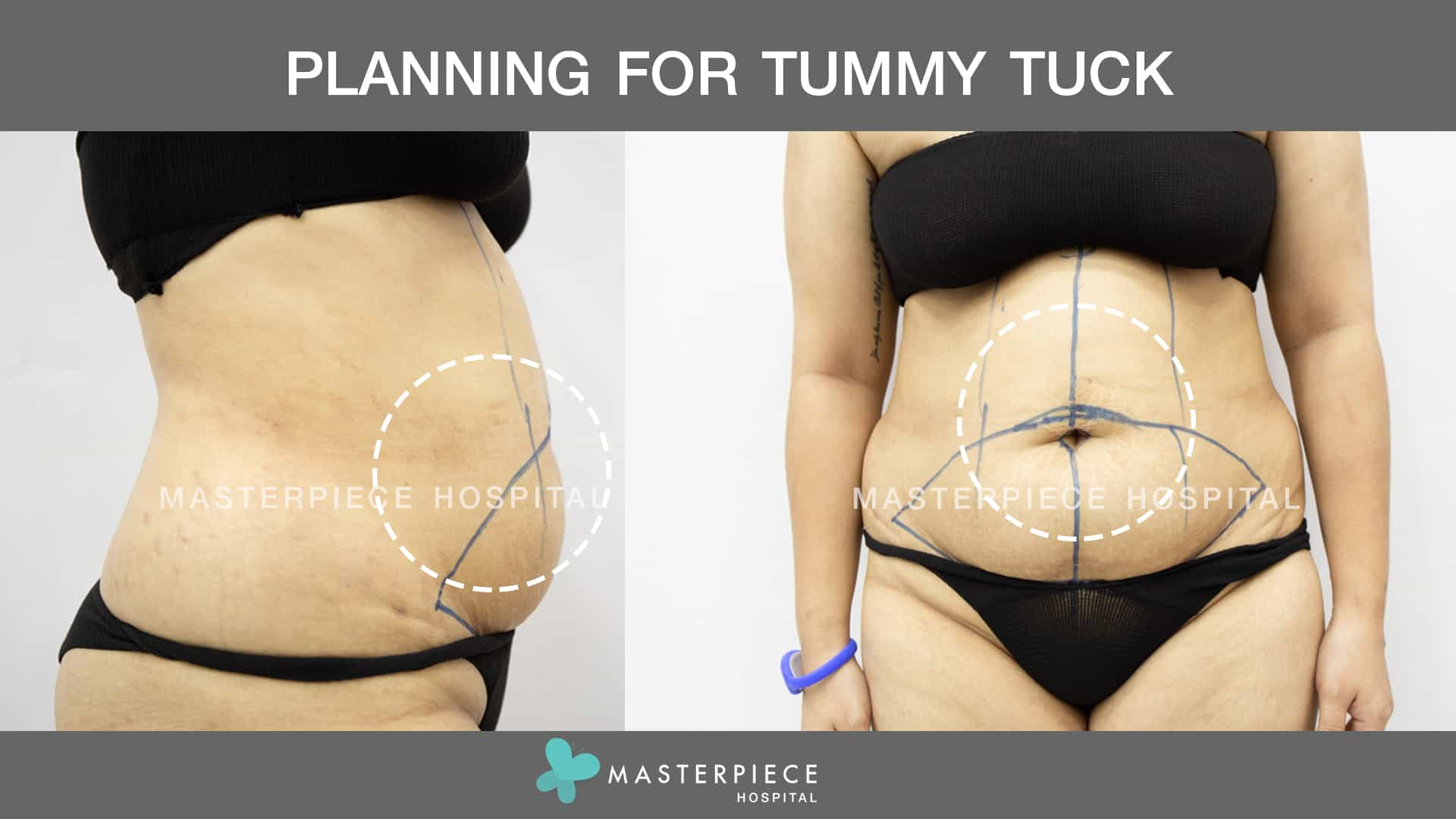 Planning for Tummy Tuck