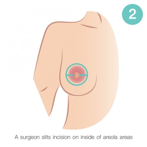 inside of areola areas