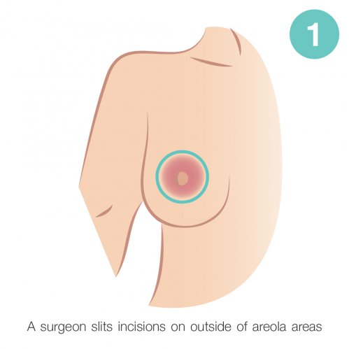 outside of areola areas