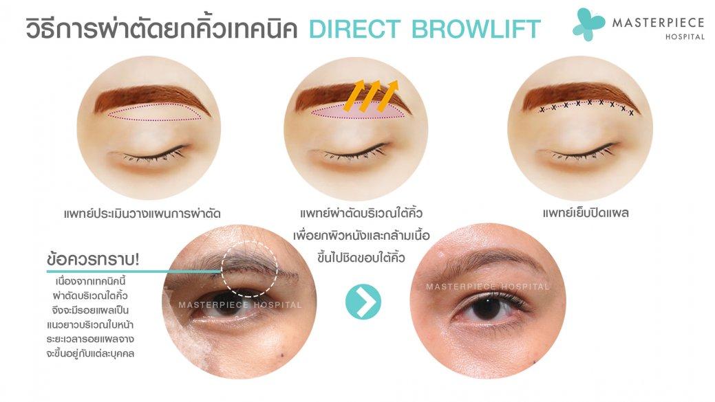 วิธีผ่าตัด-direct