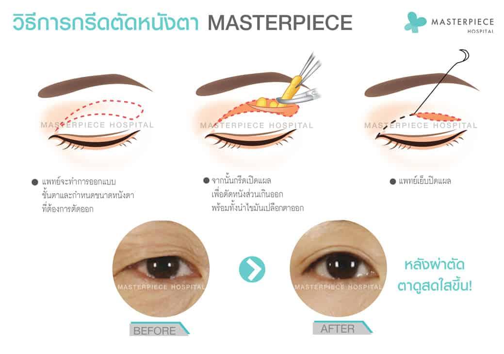 วิธีการกรีดตาบนแก้ตาตก